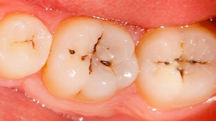 Got Cavities? Here is What You Need to Know