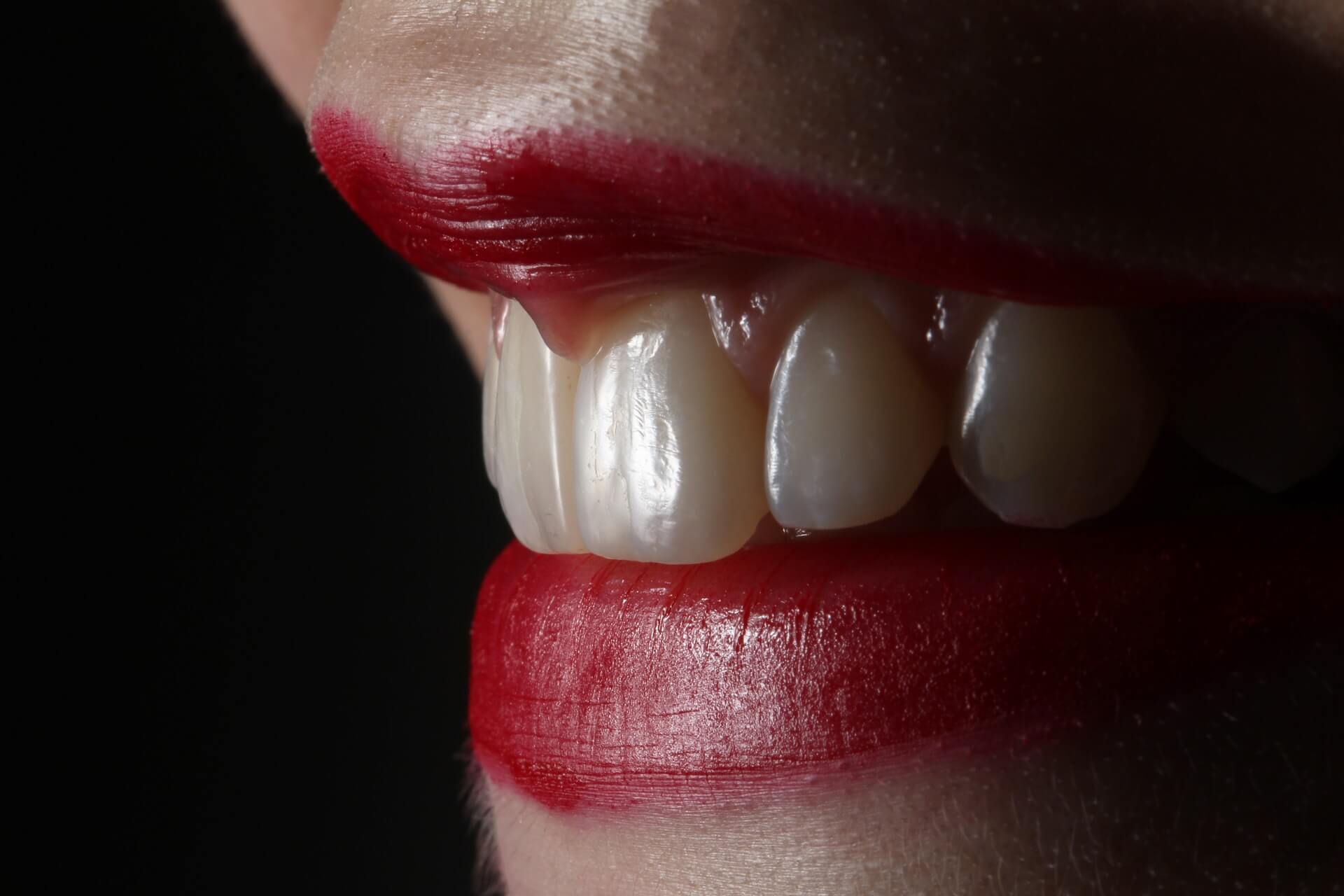 Things You Need To Know About Teeth Whitening