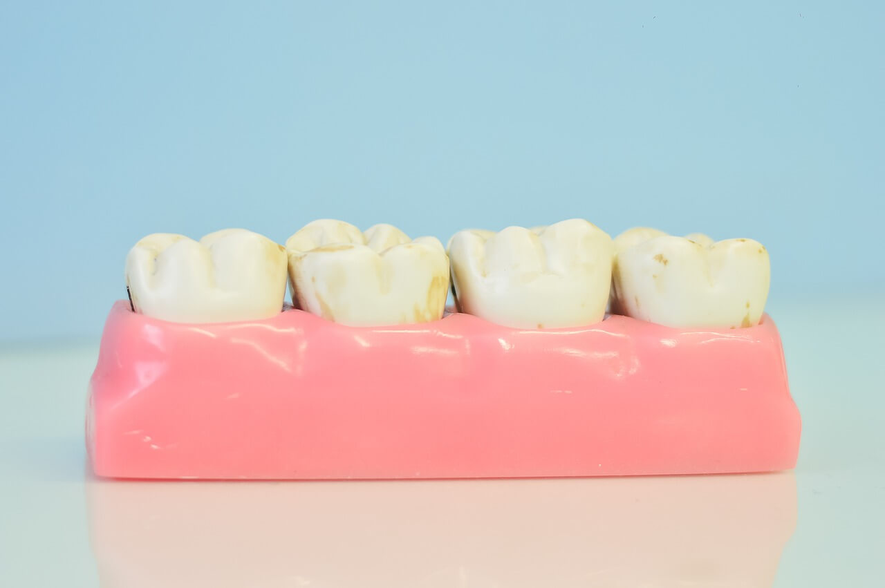 Wisdom Teeth Removal – What You Ought to Know?